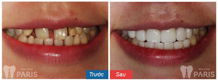 Bọc răng sứ thẩm mỹ phương pháp làm đẹp răng an toàn và hiệu quả 8