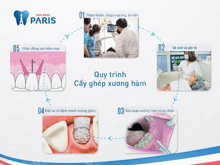 vi phẫu cấy ghép xương hàm 2