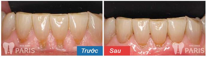 Lấy cao răng siêu âm Cavitron BP không đau, sạch bay mảng bám 6