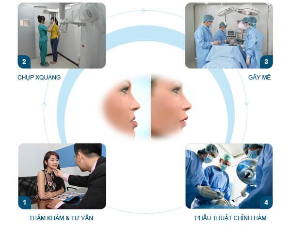 Quy trình phẫu thuật chỉnh hàm hô móm