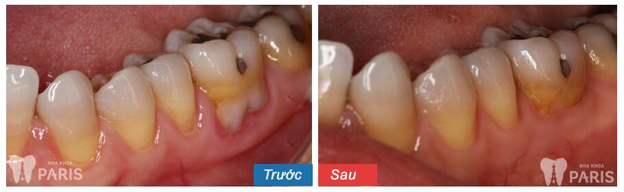 Lấy cao răng siêu âm Cavitron BP không đau, sạch bay mảng bám 7