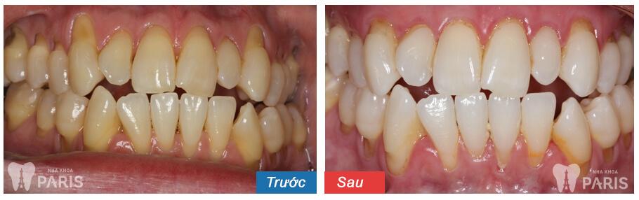 Lấy cao răng siêu âm Cavitron BP không đau, sạch bay mảng bám 8