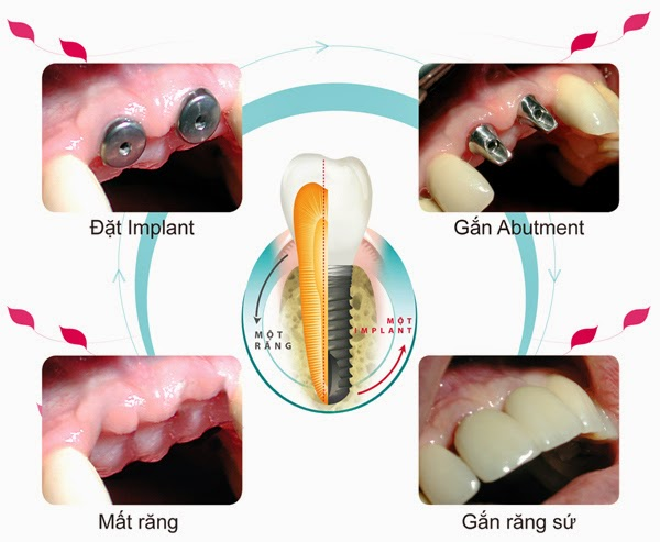 implant123