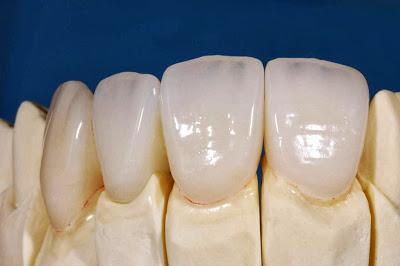 trồng răng sứ có phải bỏ răng thật đi không