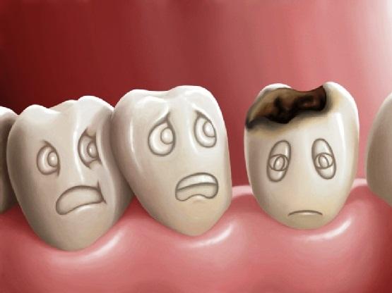 Image result for Các bệnh răng miệng thường gặp