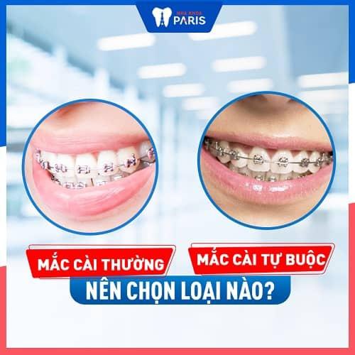 Nên sử dụng niềng răng mắc cài loại nào tốt nhất?