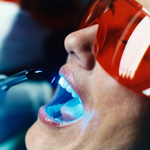 Kinh nghiệm làm trắng răng hiệu quả giúp răng trắng sáng