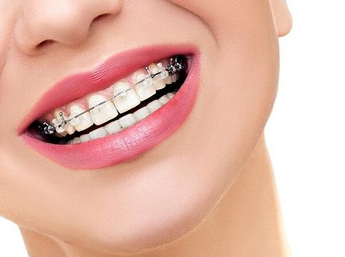 Có nên niềng răng không? Chuyên gia giải đáp chi tiết