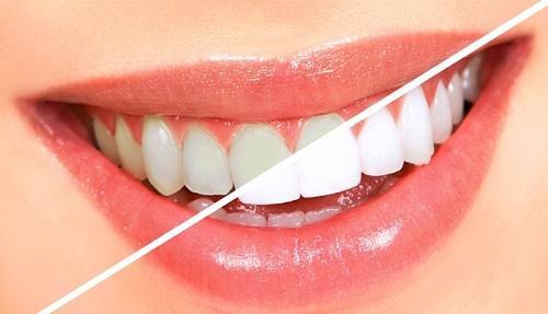 Có nên tẩy trắng răng không? Liệu tẩy trắng có làm răng ê buốt?