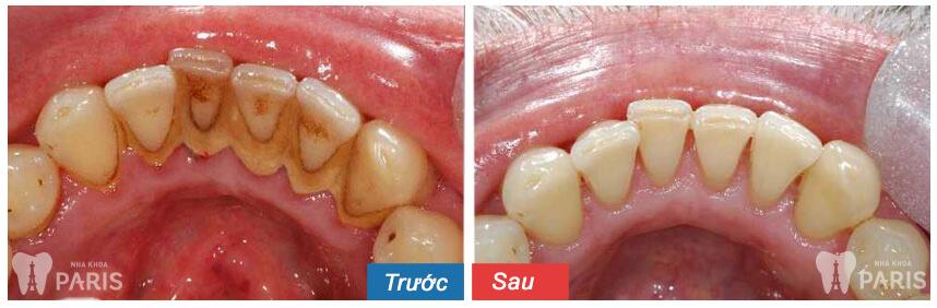 Lấy cao răng có ảnh hưởng gì không