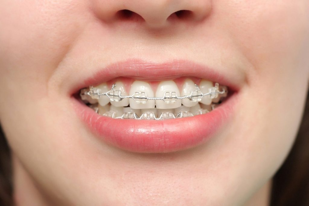 Sự đa dạng của các loại niềng răng và chi phí cập nhật năm 2017 1