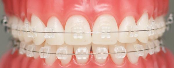 Sự đa dạng của các loại niềng răng và chi phí cập nhật năm 2017