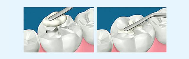 Bị sâu răng phải làm sao để khắc phục hiệu quả nhất? 2