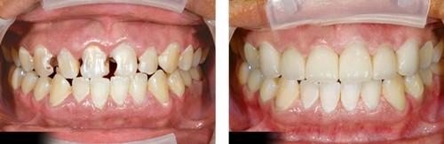 Bạn có biết sâu răng là gì không? 6