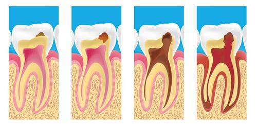 Có nên nhổ răng hàm bị sâu không? - Chuyên gia tư vấn 1