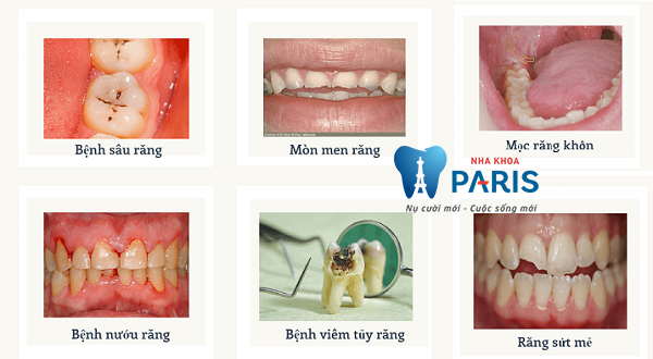 Đau răng hàm dưới phải làm sao, khắc phục tại nhà được không? 2