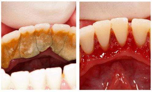lấy cao răng hết bao nhiêu thời gian