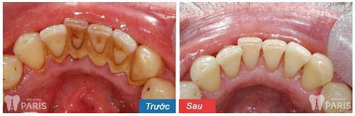lấy cao răng mất bao nhiêu thời gian
