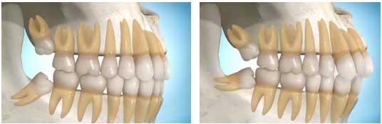 Nguyên nhân khiến răng khôn mọc lệch 2