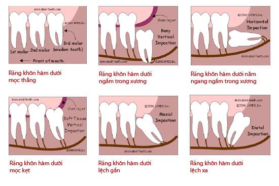 Nguyên nhân khiến răng khôn mọc lệch 3