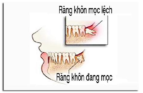 Nguyên nhân khiến răng khôn mọc lệch 4