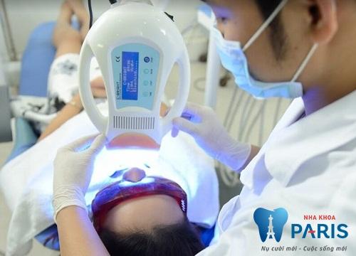 Quy trình tẩy trắng răng Laser Whitening tiêu chuẩn diễn ra thế nào? 5