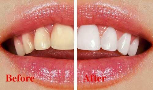 Quy trình tẩy trắng răng Laser Whitening tiêu chuẩn diễn ra thế nào? 1