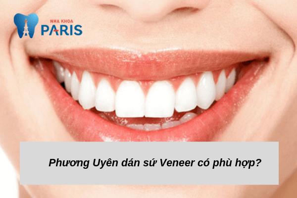 Sử dụng sứ Veneer để làm răng? - trường hợp Phương Uyên nên dán veneer