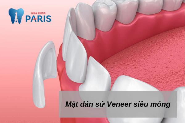 Sử dụng sứ Veneer để làm răng? - Sứ siêu mỏng