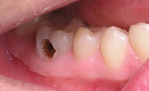 3 bệnh răng miệng bạn thường gặp và cách chữa trị (3)