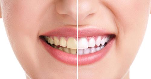 Image result for răng ố vàng