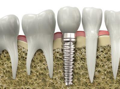 Đặt Implant là gì? Những thông tin chi tiết và trụ răng implant