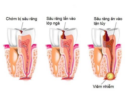 Địa chỉ khám sâu răng ở Hà Nội uy tín và an toàn 7