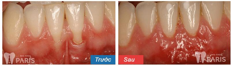 Viêm chân răng hàm có phải nhổ răng không? 2