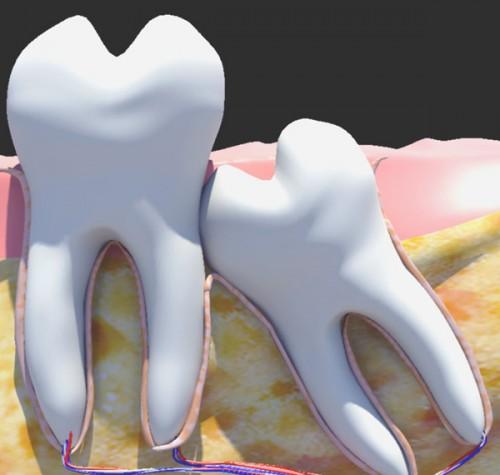 Nên làm gì khi mọc răng khôn để giảm đau hiệu quả? 3