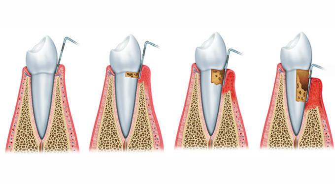 Những giai đoạn phát triển của bệnh viêm nha chu chân răng 2