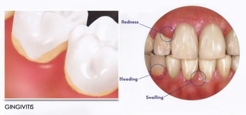 4 Bài thuốc nam chữa viêm chân răng cực kỳ Hiệu Quả và An Toàn 1