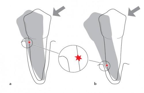 Những giai đoạn phát triển của bệnh viêm nha chu chân răng 3