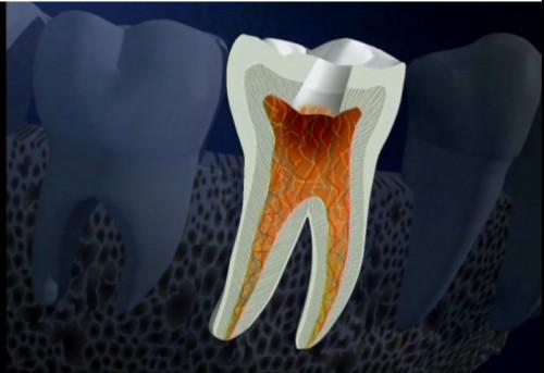 Địa chỉ khám răng khôn uy tín – chất lượng tốt nhất hiện nay