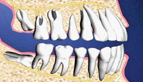 Nên làm gì sau khi nhổ răng khôn để đỡ đau 2
