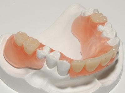 Những ưu và nhược điểm của làm răng giả tháo lắp bạn nên biết 2