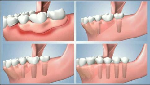 Những ưu nhược điểm quan trọng của làm răng giả tháo lắp