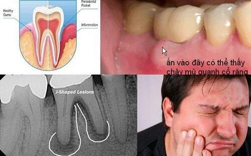 Viêm chân răng hàm có phải nhổ răng không? 1
