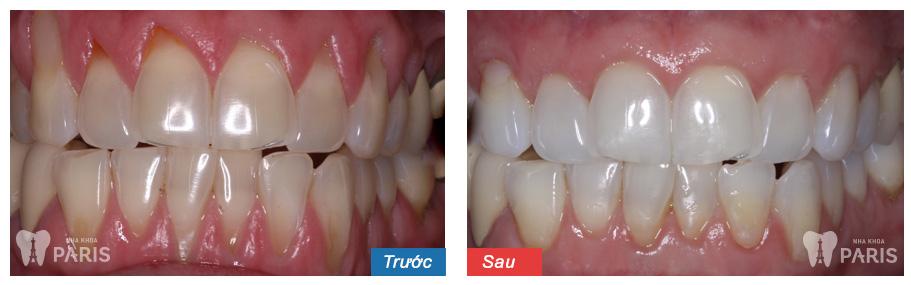 Chăm sóc nha chu toàn diện EMS cho răng chắc khỏe 1