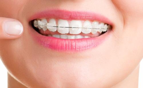 Kết quả hình ảnh cho không phải bị niềng răng chính là còn xêm
