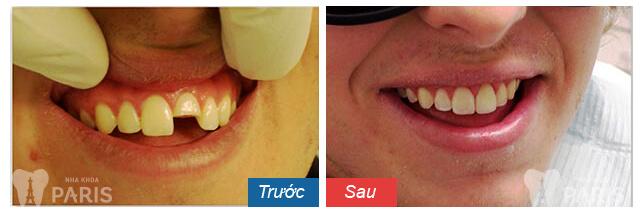 So sánh đặc điểm của răng sứ không kim loại với răng sứ kim loại 4