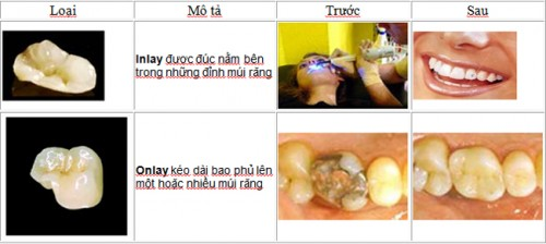 quy-trình-hàn-răng-thẩm-mỹ-3