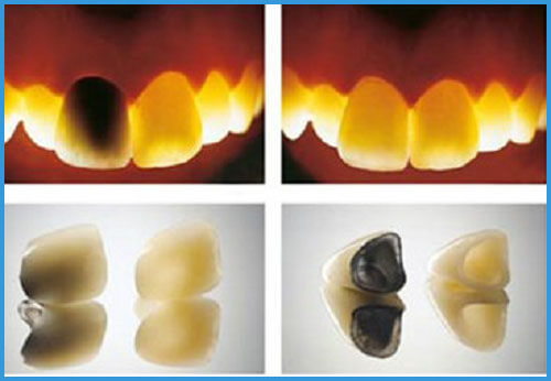 So sánh đặc điểm của răng sứ không kim loại với răng sứ kim loại 2