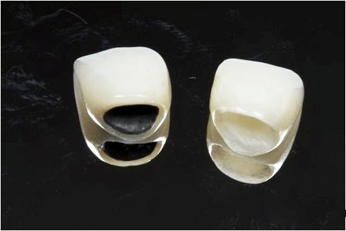 So sánh đặc điểm của răng sứ không kim loại với răng sứ kim loại 1