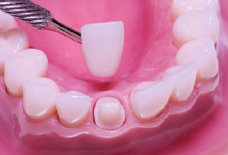 Những-vấn-đề-liên-quan-đến-tình-trạng-răng-chuột-2